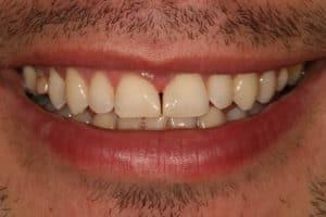post dental bonding