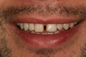pre dental bonding